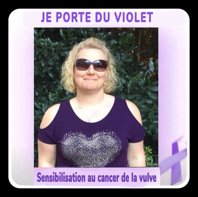 cancer vulval