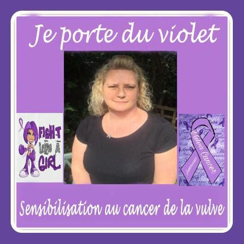 cancer vulval1
