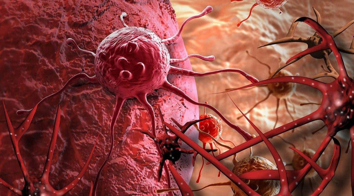 candida-albican-et-cancer-ya-til-un-lien
