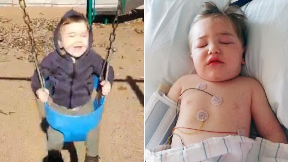 Ce petit garçon est resté à l'hôpital plusieurs jours après avoir été piqué par un insecte