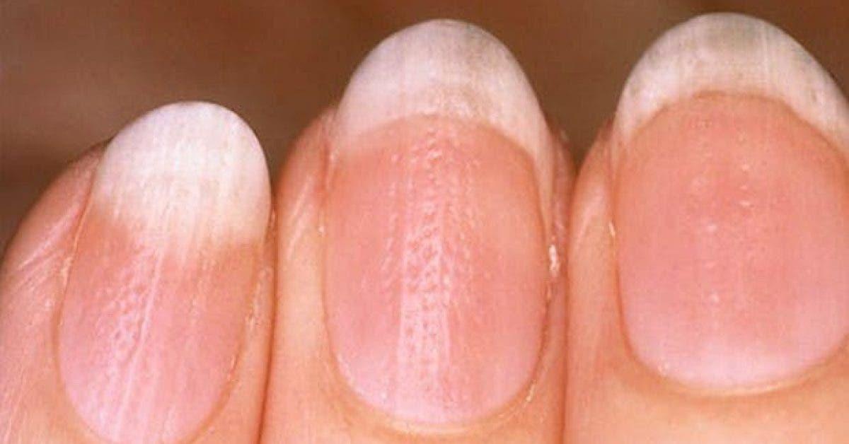 ce que vos ongles revelent sur votre sante 2 1
