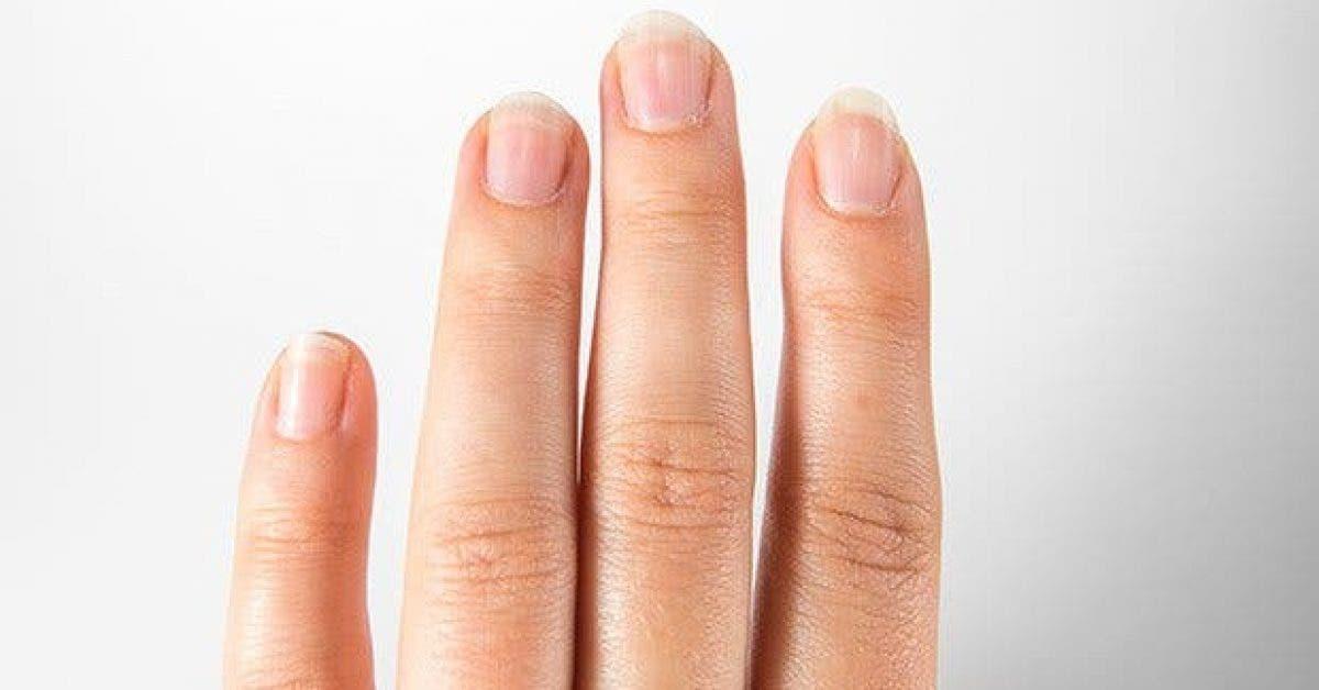 ce que vos ongles revelent sur votre sante11