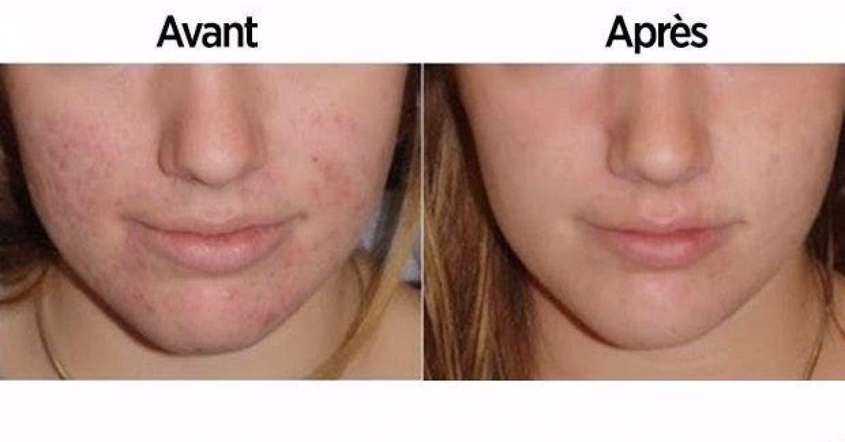 ce qui arrive lorsque vous nettoyez votre visage avec du. Black Bedroom Furniture Sets. Home Design Ideas