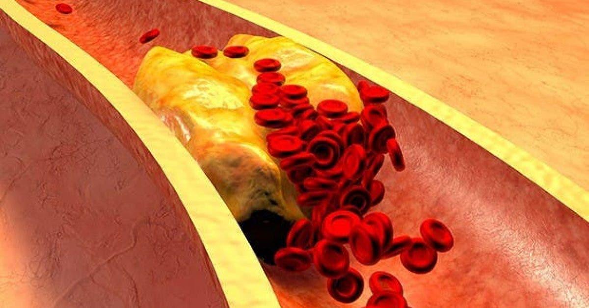ce quon ne vous dit pas sur le cholesterol 1