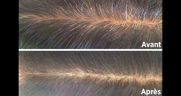 Masque pour cheveux blancs fait maison