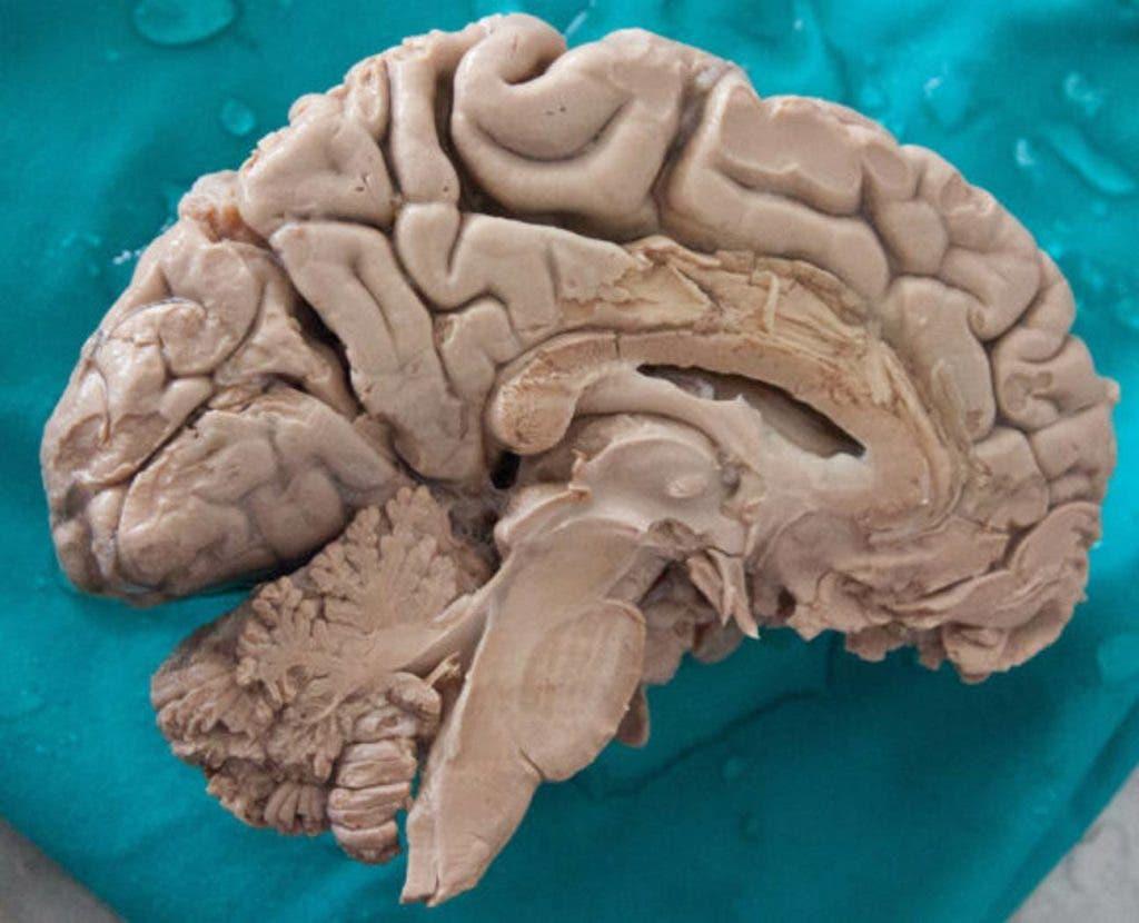 cerveauhumain