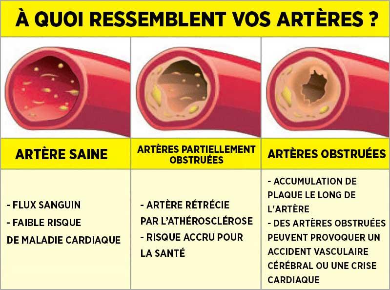 ces-3-regles-vous-aideront-a-desengorger-vos-arteres-naturellement4