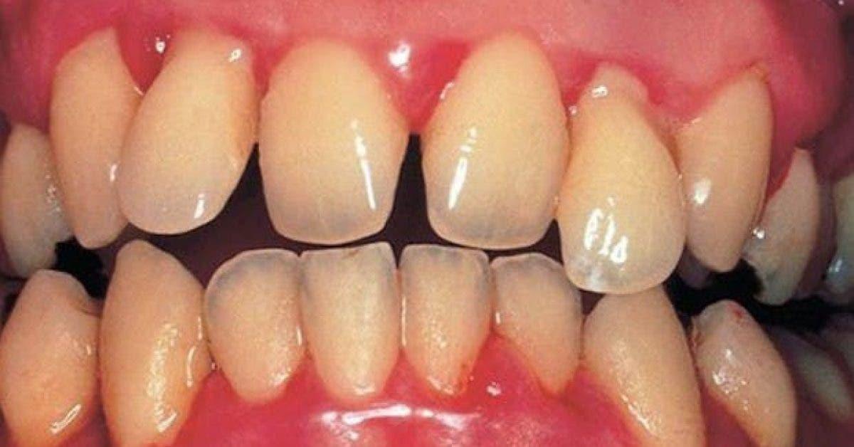 ces 4 plantes soulagent les inflammations et les problemes dentaires 1