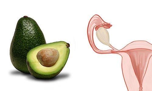 The Avocado and ovarian