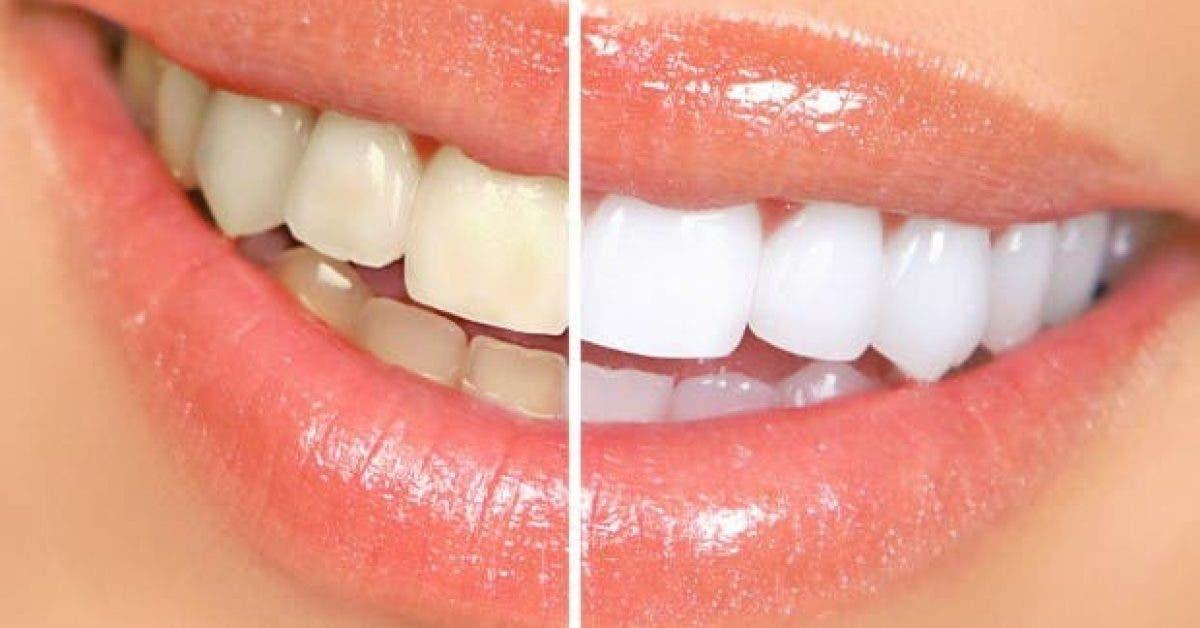 ces deux ingredients nettoient vos dents et les blanchissent 1