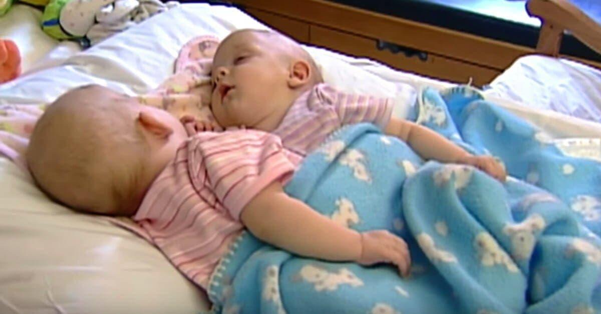 ces jumelles siamoises ont ete separees par une intervention chirurgicale