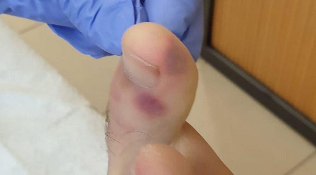 ces-signes-du-coronavirus-a-verifier-sur-vos-pieds-meme-si-vous-navez-pas-de-symptomes