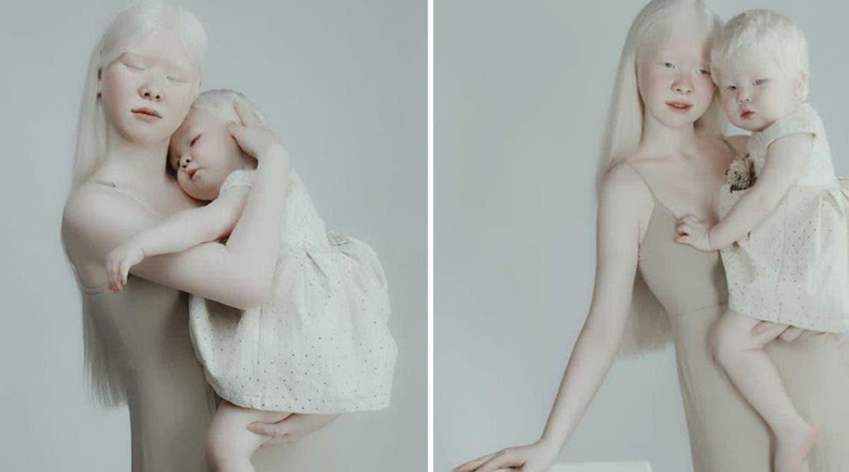 ces-soeurs-albinos-nees-a-12-ans-dintervalle-eblouissent-le-monde-par-leur-beaute-unique