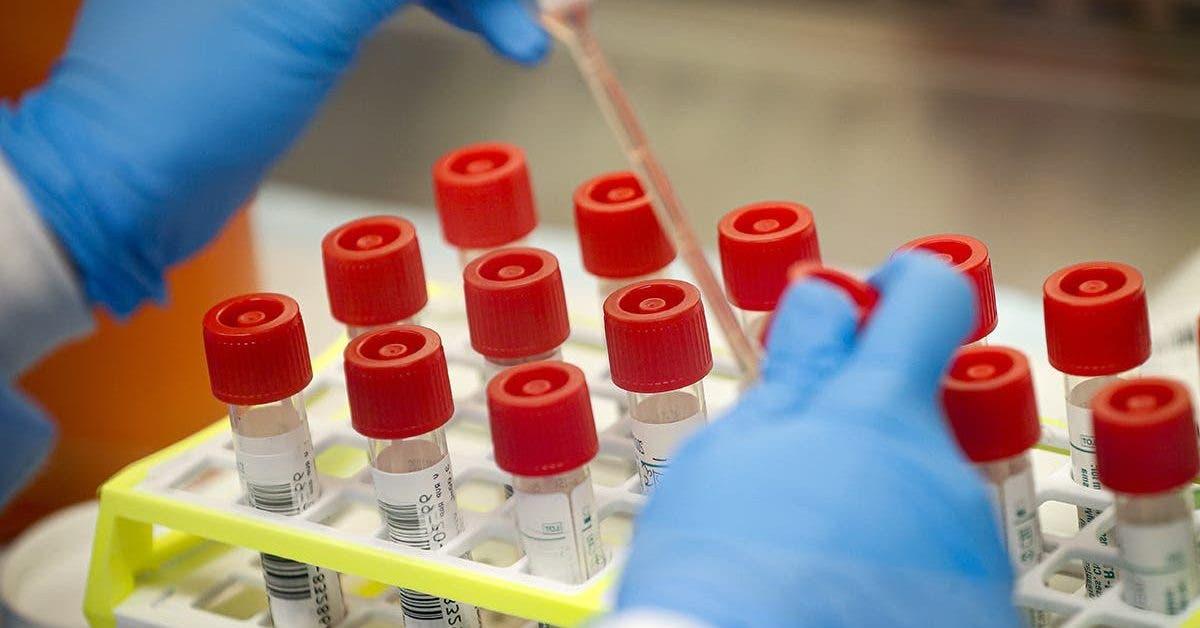 cest un nouvel espoir dans la lutte contre le coronavirus un nouveau test de depistage donnera des resultats en 45 minutes 1