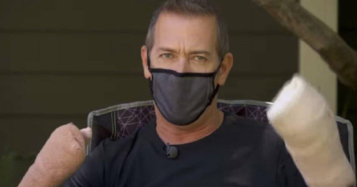 cet-homme-qui-a-perdu-tout-ses-doigts-a-cause-du-nouveau-coronavirus-alerte