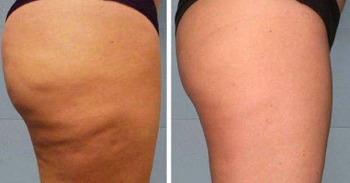 cette astuce simple permet dactiver la circulation et reduire la cellulite naturellement 1