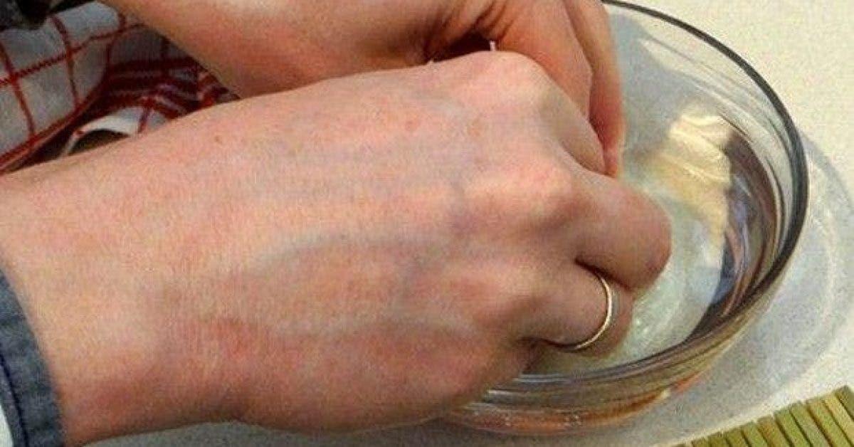 cette femme a mis ses mains dans du vinaigre de cidre deux fois par semaine le resultat est incroyable 1
