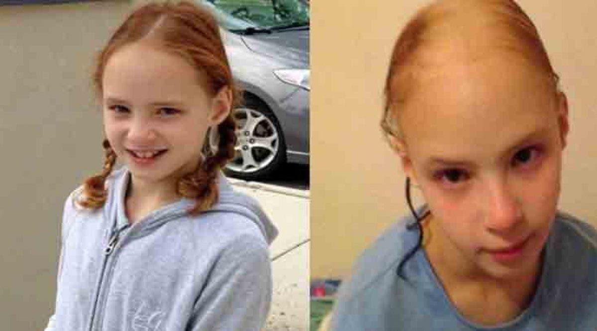 cette petite fille a perdu ses beaux cheveux après avoir utilisé ce produit capillaire populaire