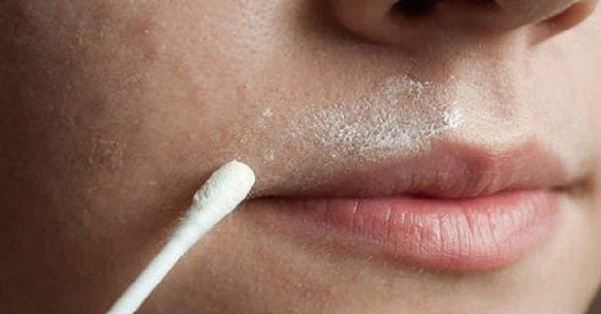 cette recette naturelle aide a se debarrasser definitivement des poils du visage 1