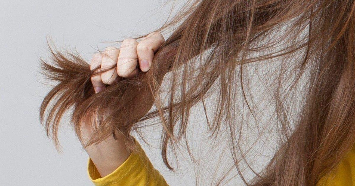 Les symptômes de l'alopécie (chute de cheveux)