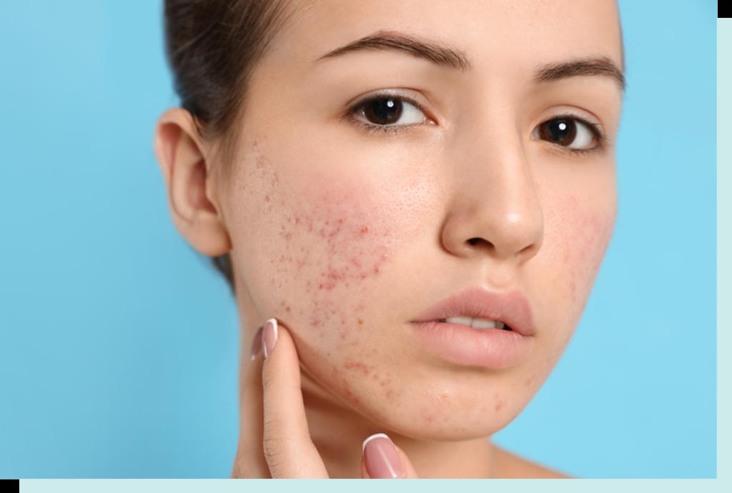 cicatrices acne1 1024x690 1