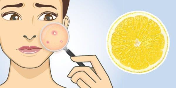 acné citron