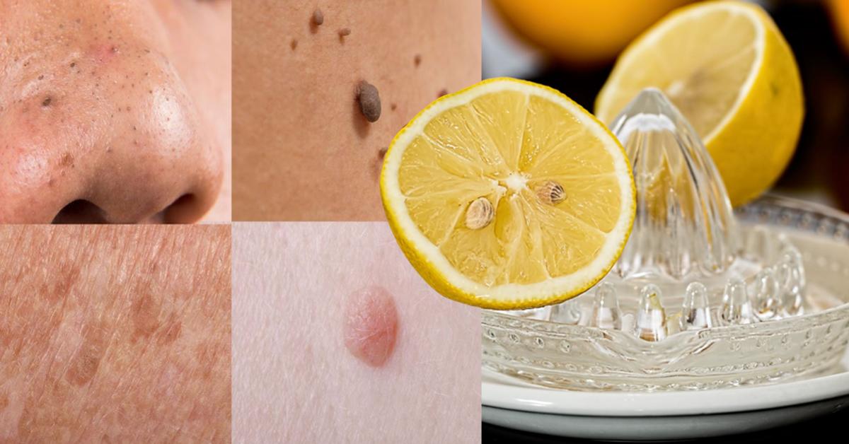 Voici comment éliminer les excroissances, verrues, points noirs et taches de vieillesse avec ces remèdes naturels