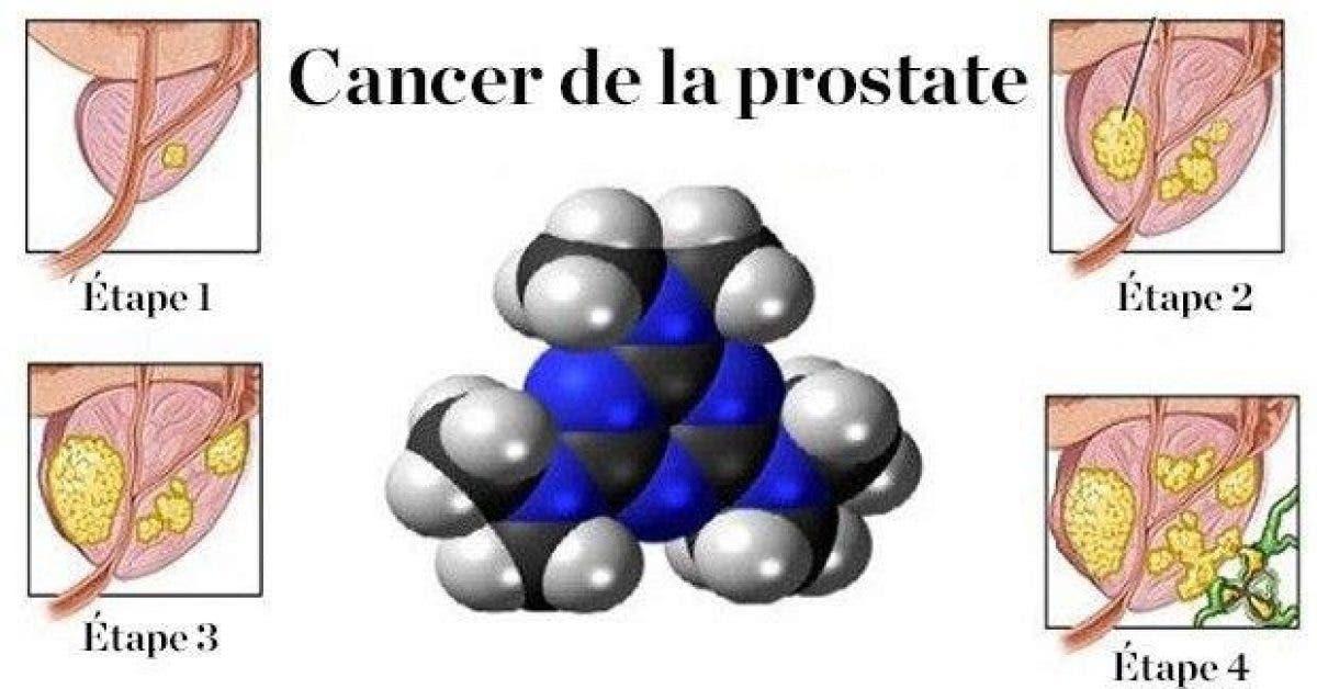 comment arreter la propagation du cancer de la prostate et des ovaires avec une plante 1