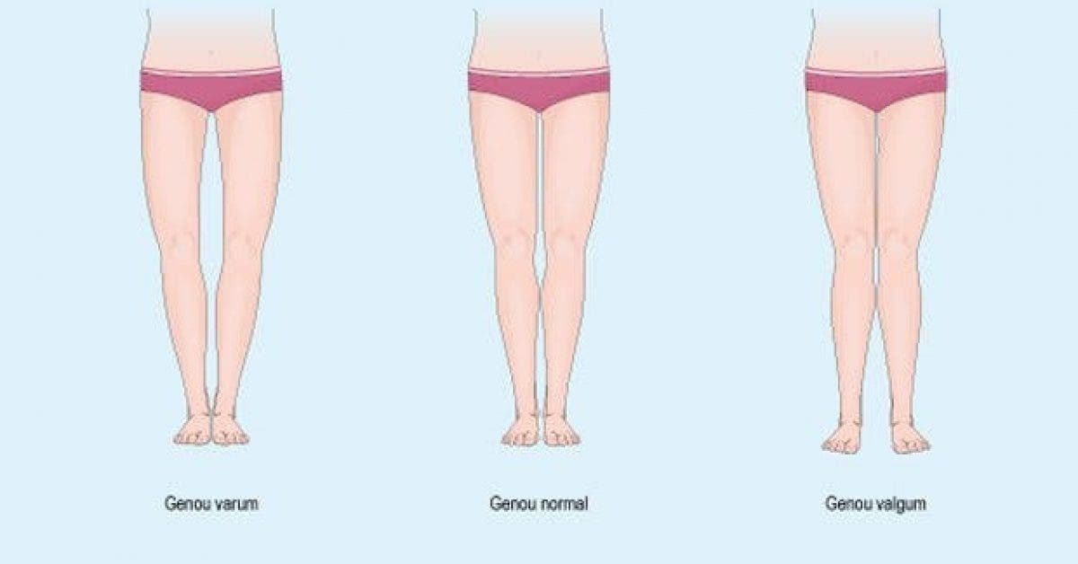 comment corriger et prevenir les jambes arquees 1