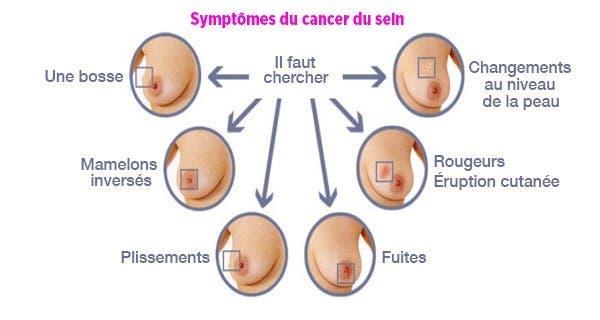 comment-detecter-le-cancer-du-sein1