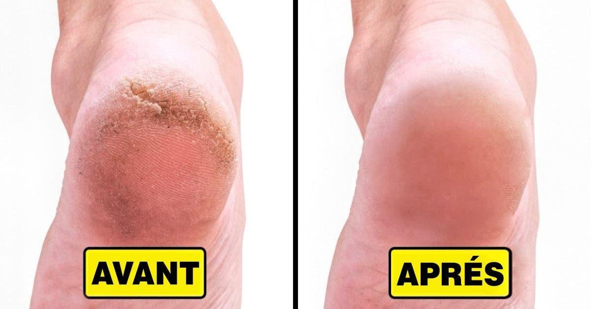 comment eliminer les talons fissures et avoir de jolis pieds 1