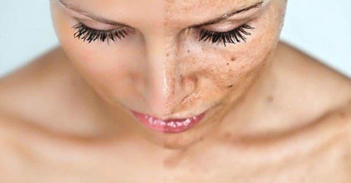 comment nettoyer les taches de votre visage 1