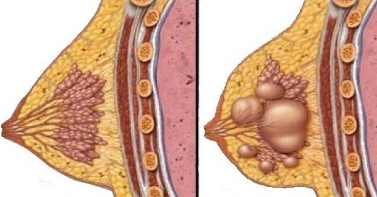 comment prevenir et traiter les kystes mammaires naturellement 1