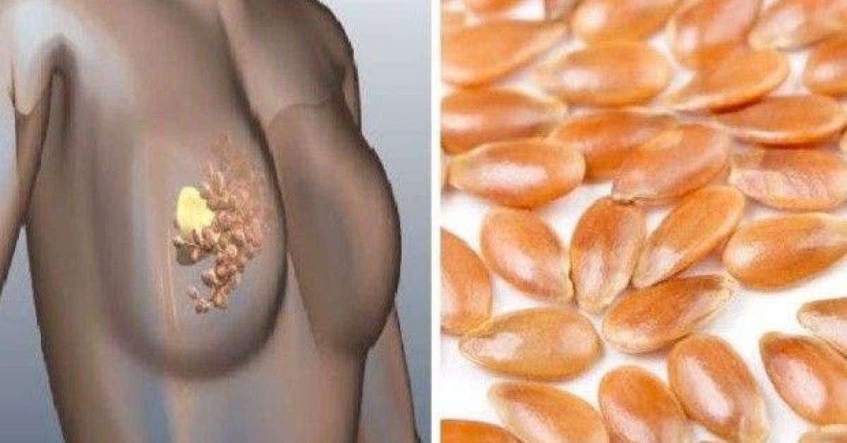 comment prevenir le cancer du sein grace a cet ingredient puissant 1