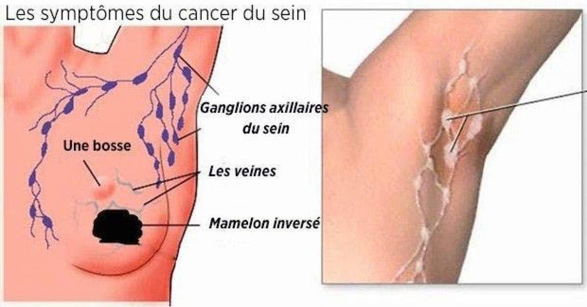 comment prevenir le cancer du sein grace a une detoxification des aisselles 1