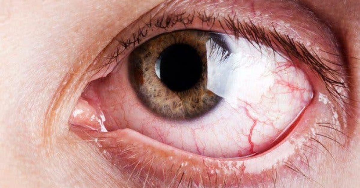 comment proteger vos yeux si vous passez plus de 4 heures devant un ecran 1