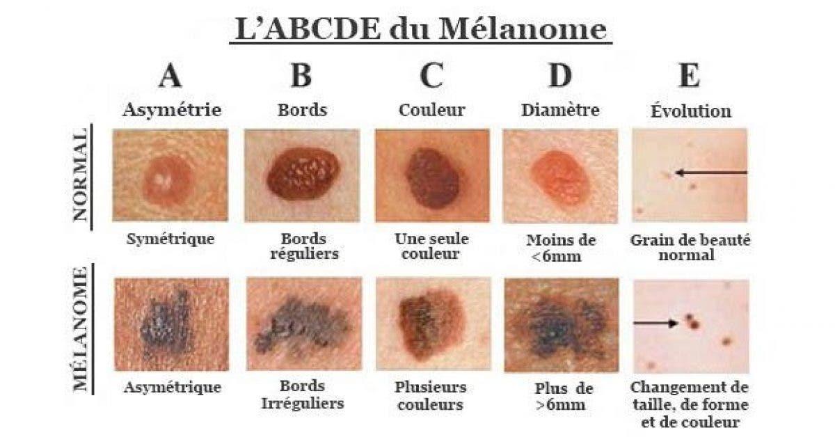 comment reconnaitre le cancer de la peau1 1