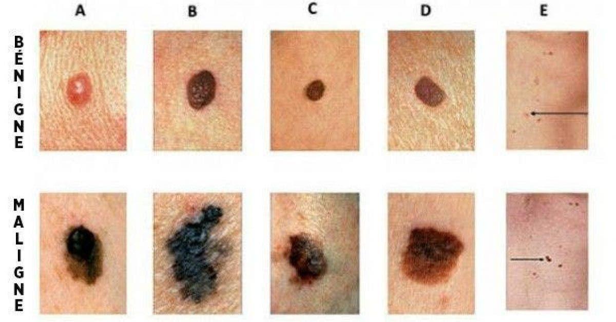comment reconnaitre les signes dun cancer de la peau un geste qui peut vous sauver la vie 1