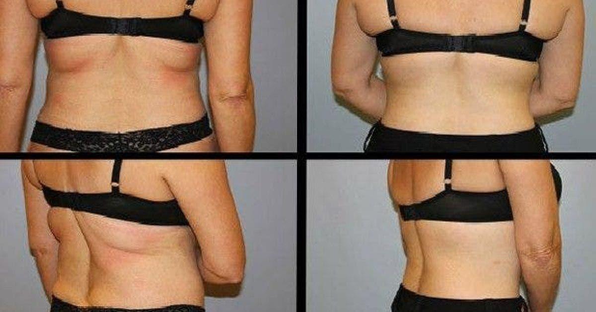 comment reduire efficacement la graisse du dos 1