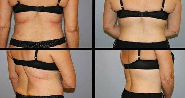 Comment perdre la graisse du dos: 10 tapes - wikiHow