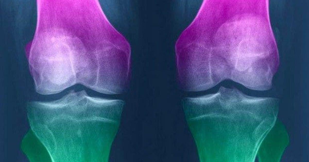 comment regenerer le cartilage du genou naturellement 1
