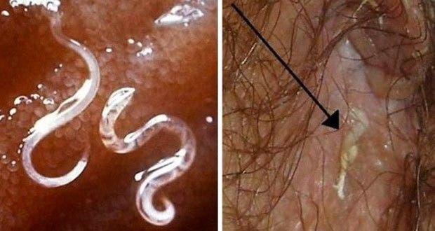 La génération sexuelle des parasites