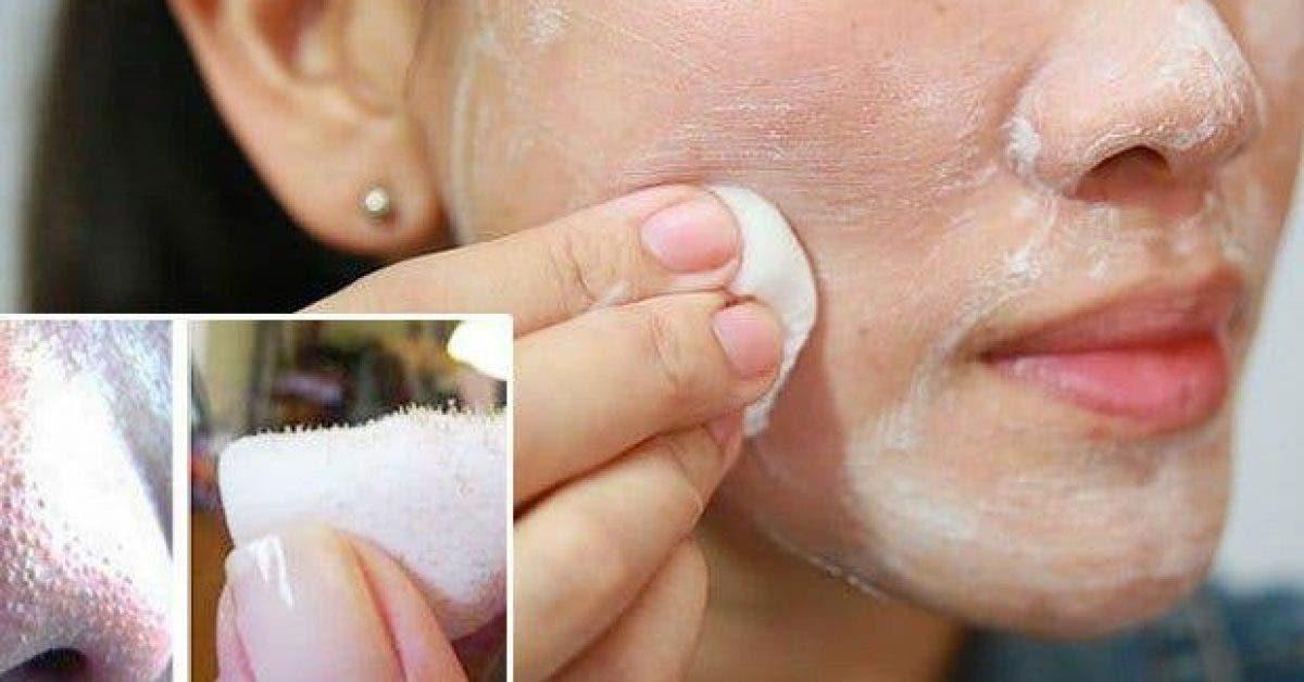 comment se debarrasser des points noirs sur le nez rapidement chez vous 1 1