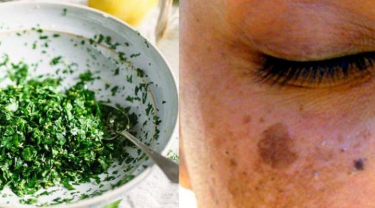 comment-utiliser-le-persil-sur-le-visage-pour-eliminer-les-taches-lacne-et-les-rides