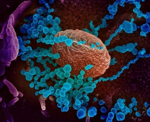 coronavirus microscope