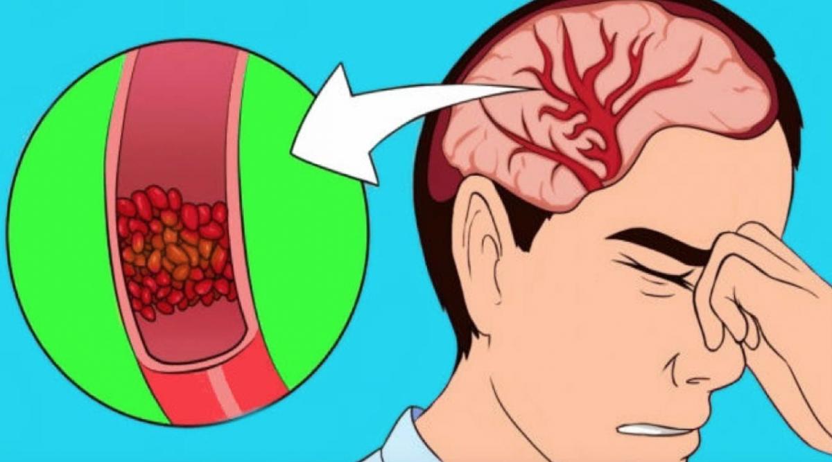 10 signes annonciateurs d'une grave déshydratation