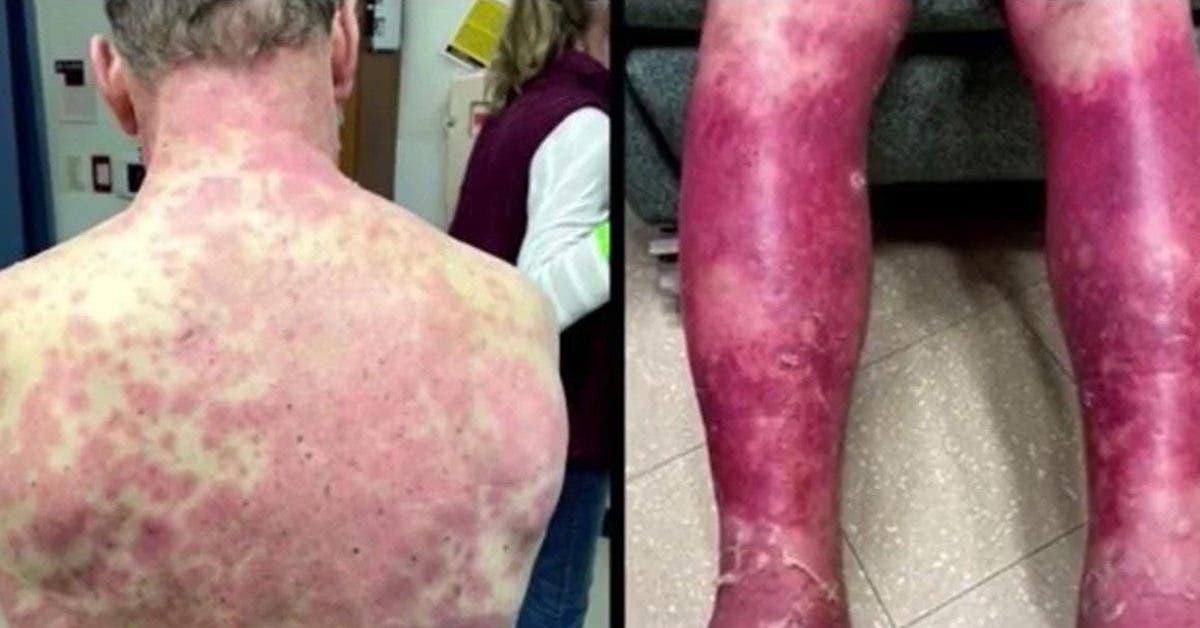 covid-19--un-homme-souffre-dun-etrange-effet-secondaire-sur-la-peau-apres-avoir-recu-le-vaccin-de-johnson--johnson