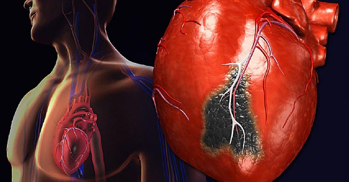 5 symptômes d'une crise cardiaque