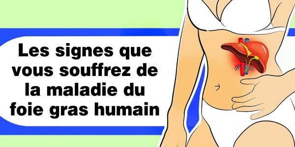 de-plus-en-plus-de-personnes-souffrent-de-la-maladie-du-foie-gras-voila-comment-vous-soigner-naturellement