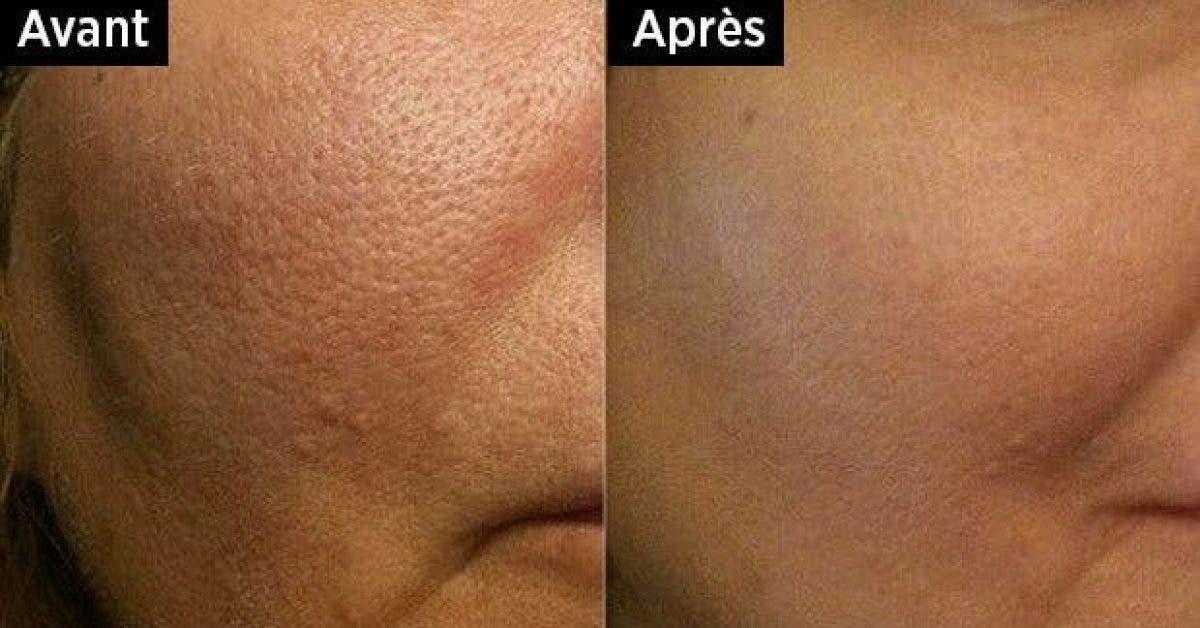 debarrassez vous des pores dilates avec ce masque super efficace a base de 2 ingredients 1